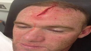 Wayne Rooney et son impressionante blessure